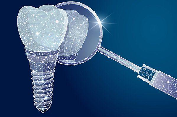 Dental Implants Restorations